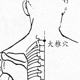 大椎-中医拔罐常用穴位