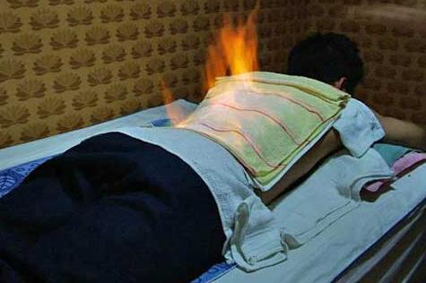 火疗能治病吗?可治疗寒性疾病