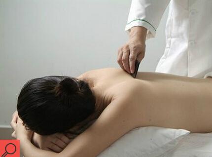 中医刮痧治疗慢性疲劳综合征