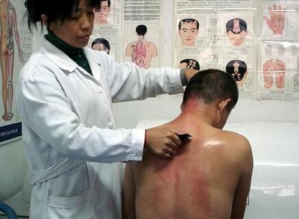 中医刮痧的好处 三个部位刮痧方法功效