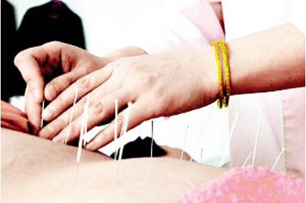 针灸过敏的表现和预防方法