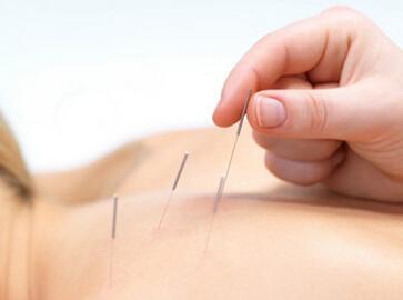 针灸为什么有补泻效应的功效