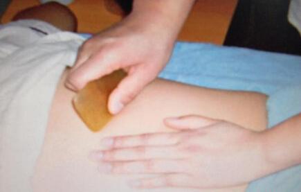 身体不同刮痧部位的保健疗法