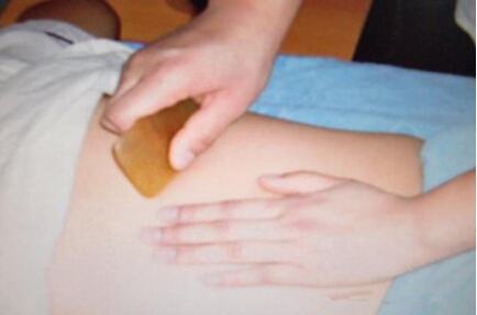 刮痧治疗夏季中暑的手法