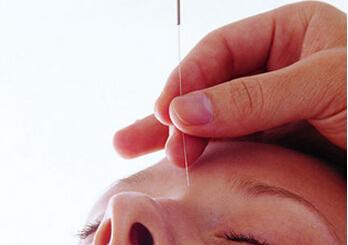 针灸的功效 哪种针灸姿势最好