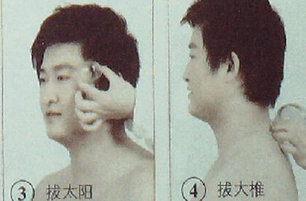 头痛的拔罐疗法