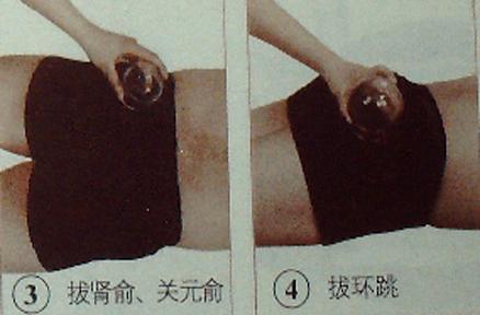 腰痛的抜罐疗法