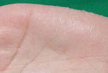 中医刮痧治多汗症常用方法