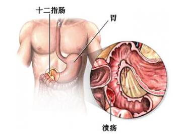 十二指肠溃疡中医刮痧止痛疗效佳