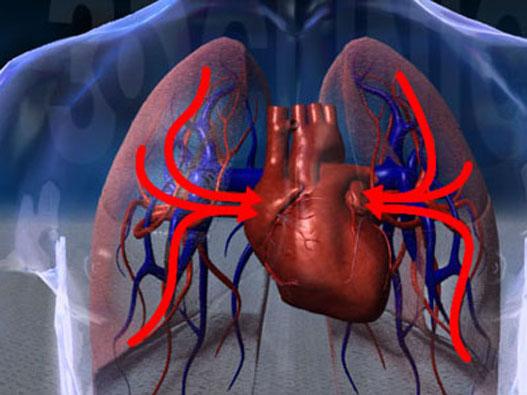 慢性肺心病的食疗与药膳方