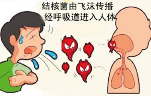 肺结核的食疗与药膳方