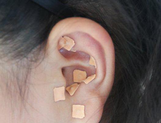 耳针护胃养生法