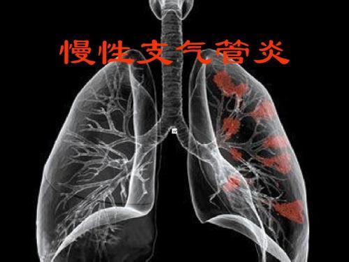 慢性气管炎