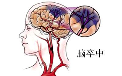 脑血管意外