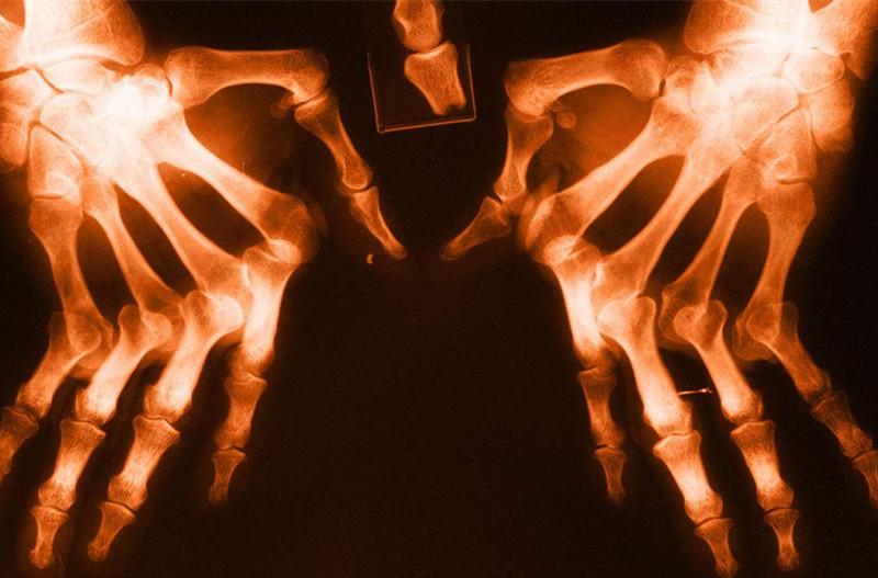 类风湿性关节炎患者切勿忽视关节功能运动