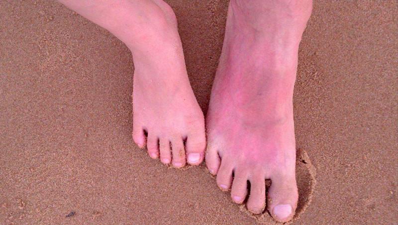 夏季皮肤晒红的急救和美白方法
