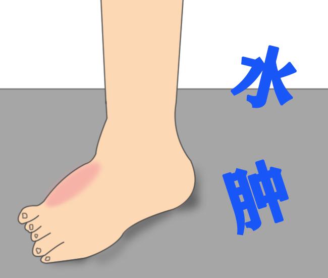 如何预防脚部水肿